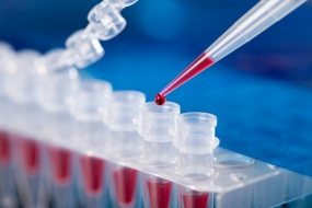 Mikroliterpipette tropft in ein PCR-Röhrchen © science photo, shutterstock